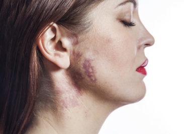 onkologia głowy i szyi